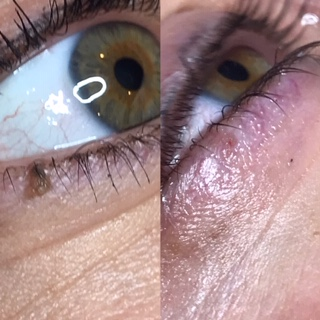 eye skin tag removal
