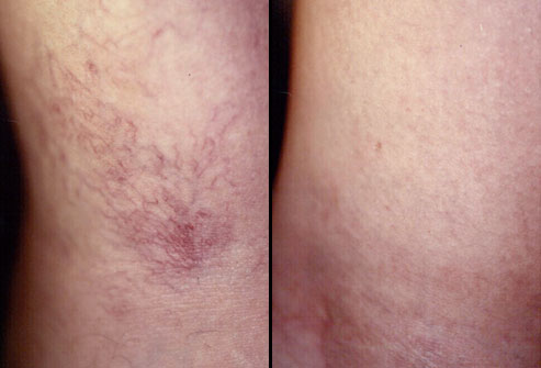 thread vein treatment with scleretherapy