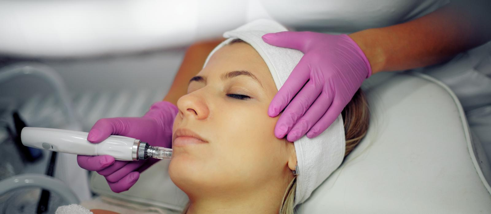 micro-needling for skin